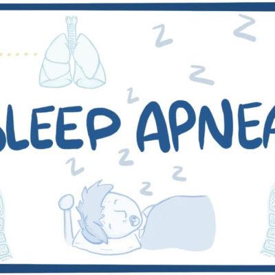 What are the causes of Sleep apnea?
